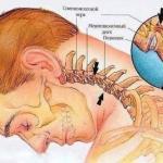 Полезные упражнения против шейного остеохондроза - пригодится.